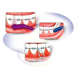 richtige pflege bei festsitzenden zahnspangen dentaler. Black Bedroom Furniture Sets. Home Design Ideas